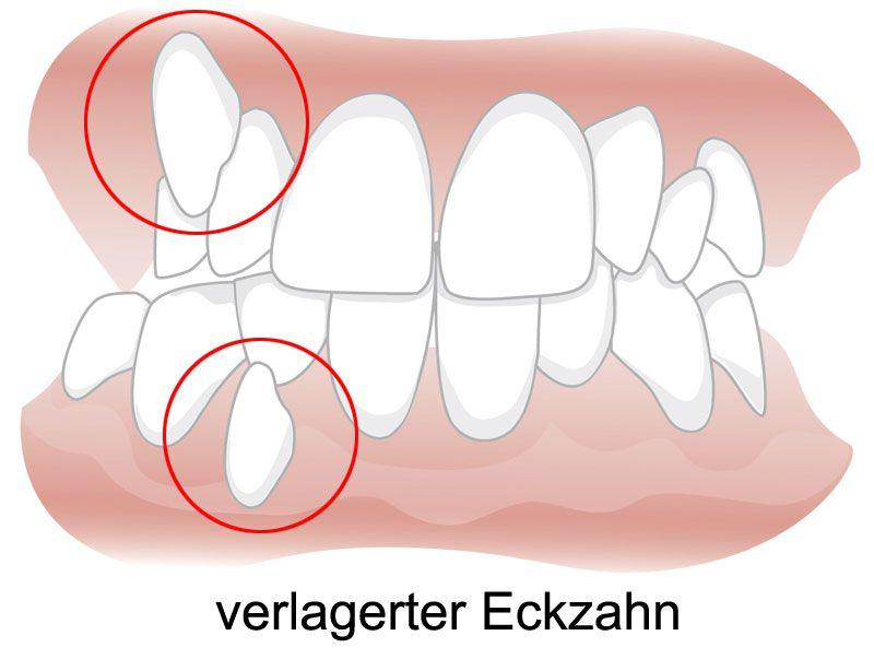 Zahnlücke backenzahn